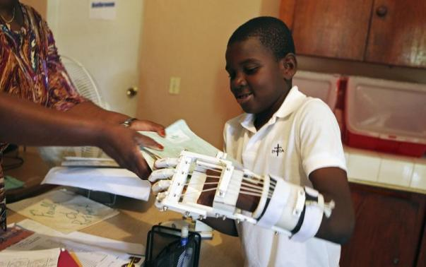 3D Printed Arm For Haiti boy