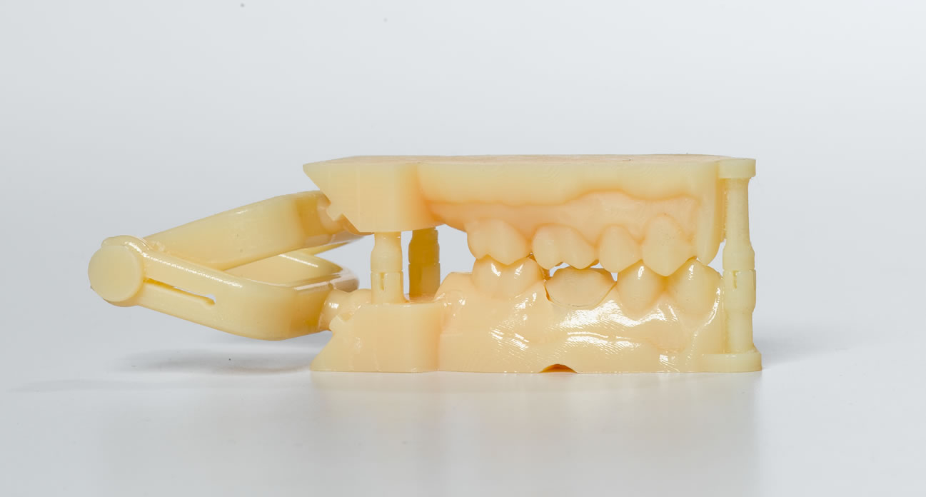 The Silent 3D Printing Revolution in Dentistry