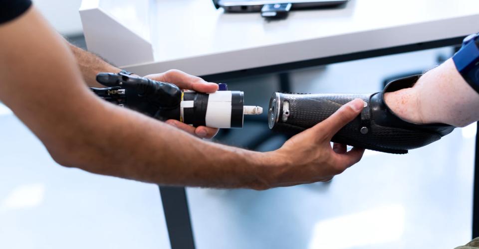 3D Printed Prosthetics: The Next Revolution