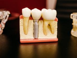 3D Printed Teeth: Revolutionizing Dentistry