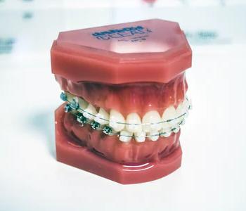 שיניים בהתאמה אישית